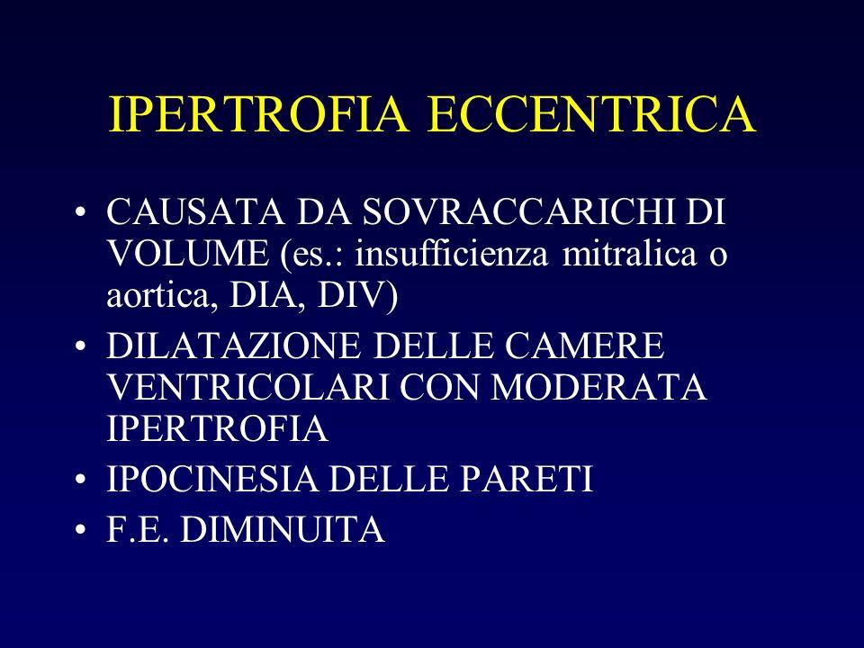 IPERTROFIA ECCENTRICA