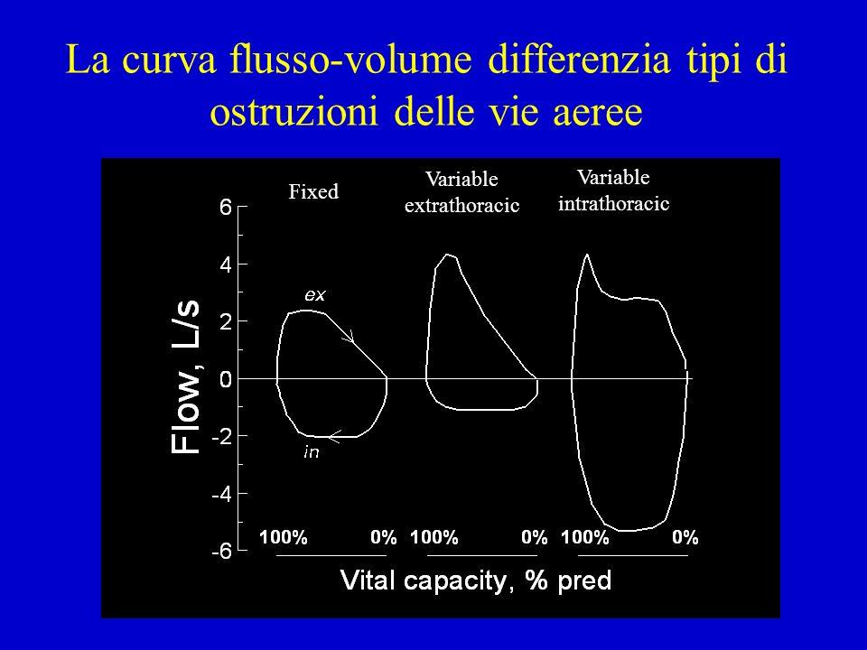 La curva flusso-volume differenzia tipi di ostruzioni delle vie aeree