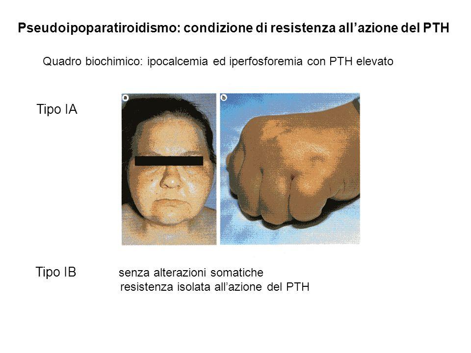 Pseudoipoparatiroidismo: condizione di resistenza all'azione del PTH