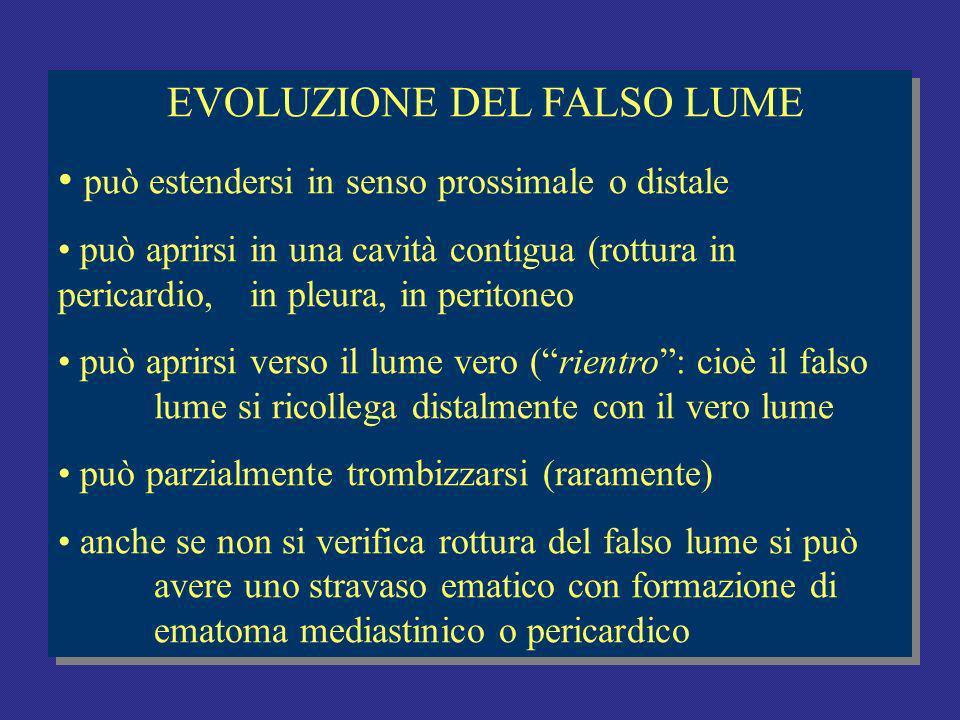 EVOLUZIONE DEL FALSO LUME
