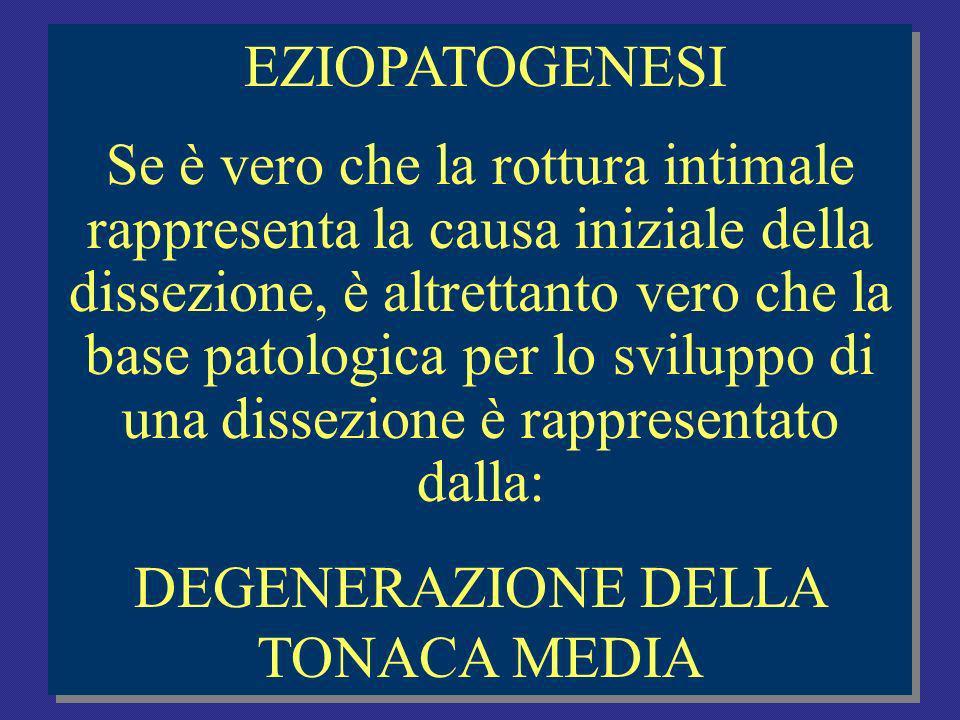 DEGENERAZIONE DELLA TONACA MEDIA