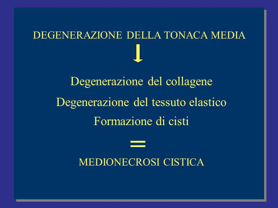 = Degenerazione del collagene Degenerazione del tessuto elastico