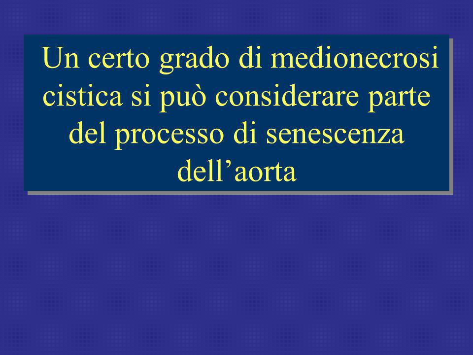 Un certo grado di medionecrosi cistica si può considerare parte del processo di senescenza dell'aorta