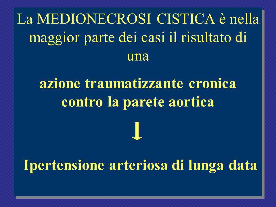 Ipertensione arteriosa di lunga data