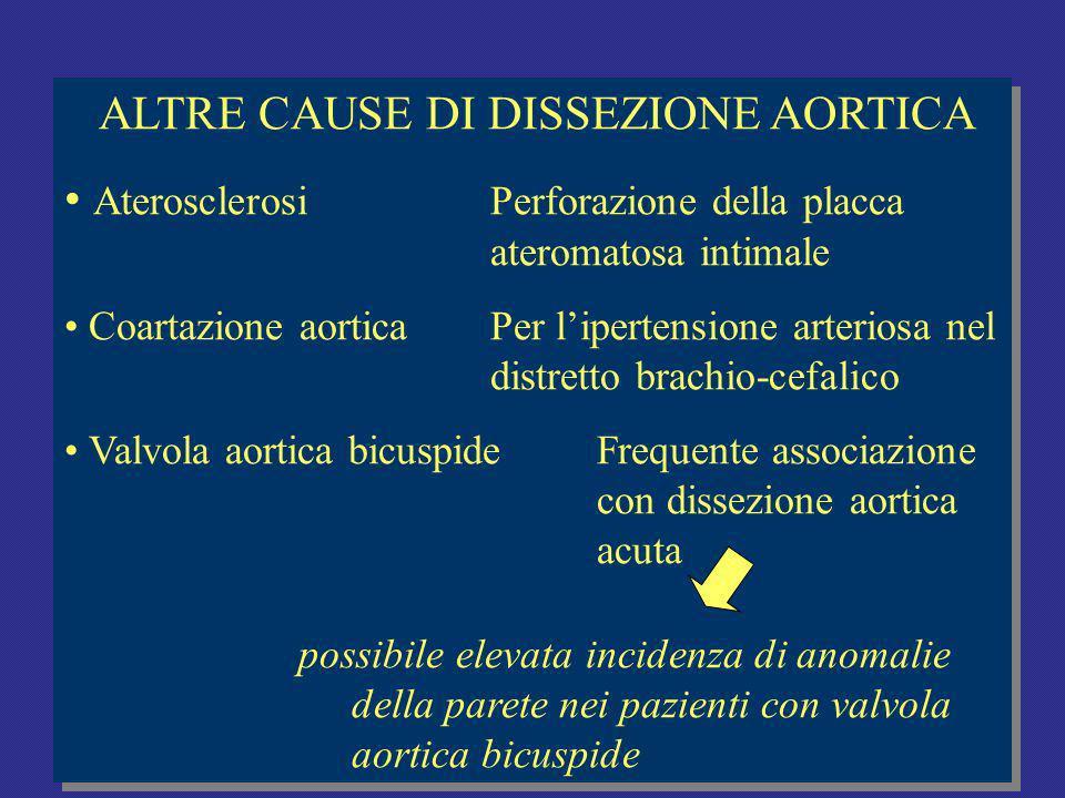 ALTRE CAUSE DI DISSEZIONE AORTICA