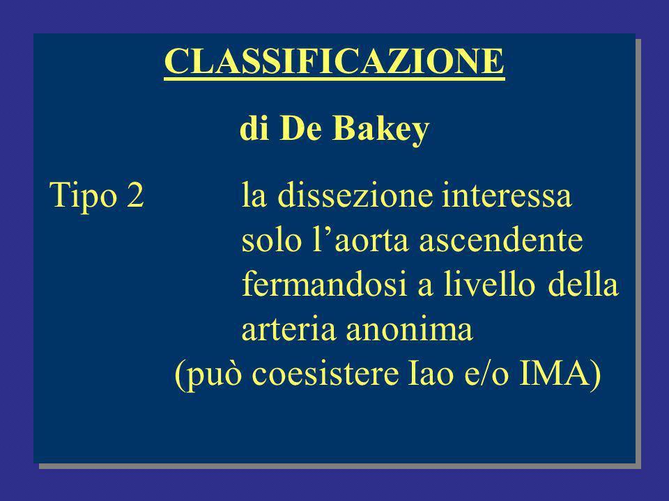 CLASSIFICAZIONE di De Bakey.