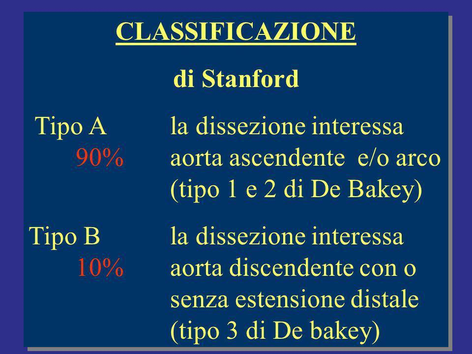 CLASSIFICAZIONE di Stanford. Tipo A la dissezione interessa 90% aorta ascendente e/o arco (tipo 1 e 2 di De Bakey)