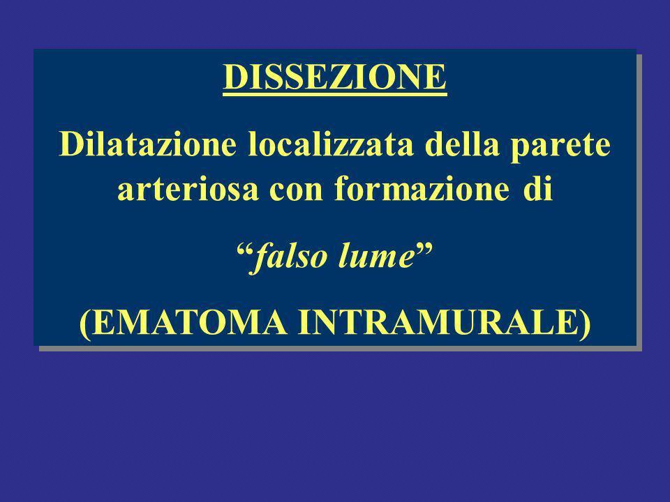 Dilatazione localizzata della parete arteriosa con formazione di