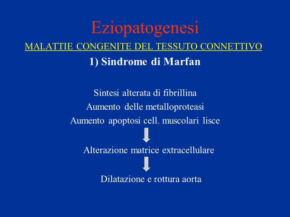 Eziopatogenesi 1) Sindrome di Marfan