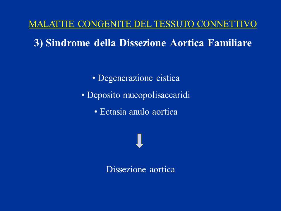 3) Sindrome della Dissezione Aortica Familiare