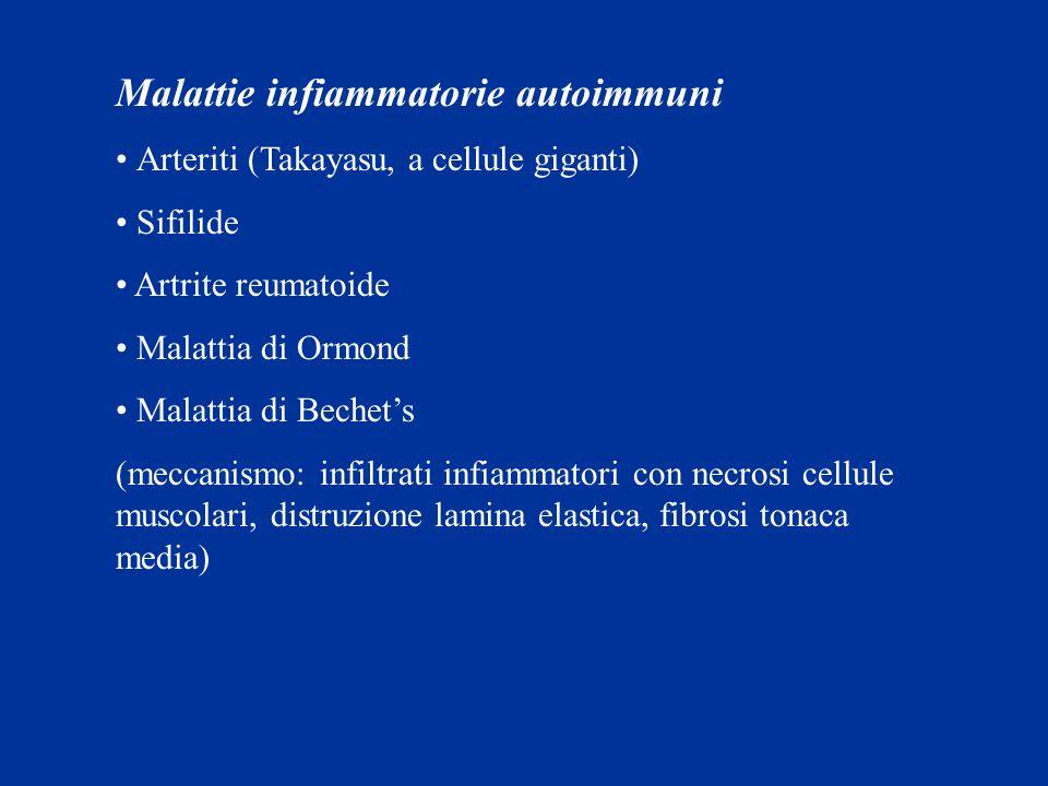 Malattie infiammatorie autoimmuni