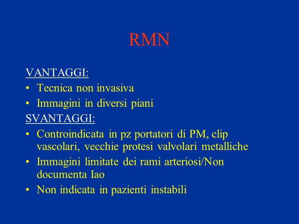 RMN VANTAGGI: Tecnica non invasiva Immagini in diversi piani