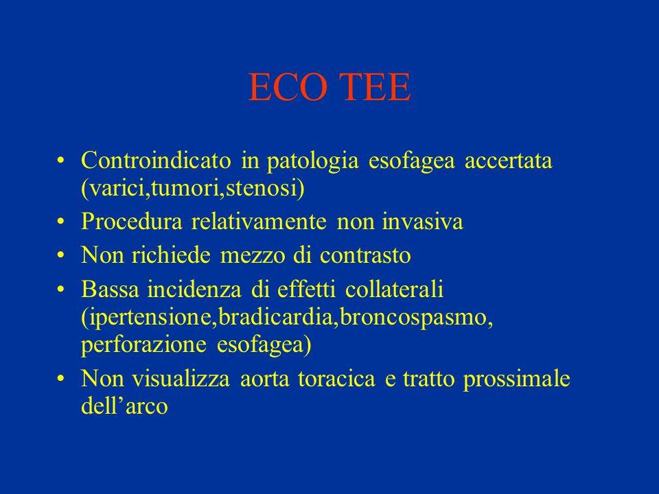 ECO TEE Controindicato in patologia esofagea accertata (varici,tumori,stenosi) Procedura relativamente non invasiva.