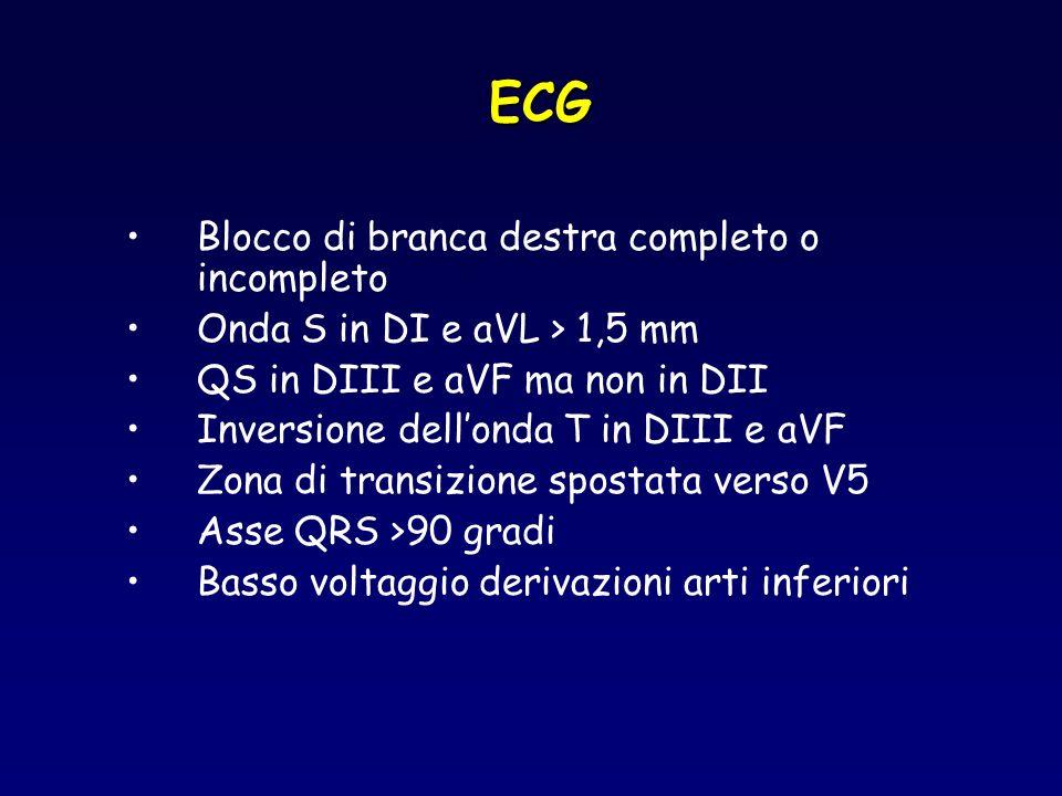 ECG Blocco di branca destra completo o incompleto