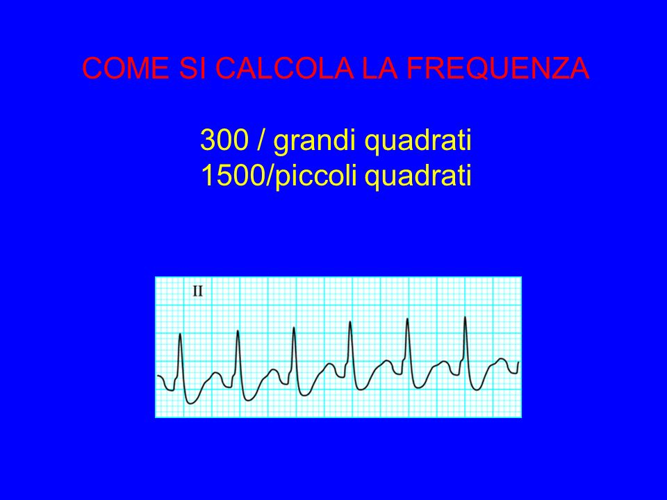 COME SI CALCOLA LA FREQUENZA 300 / grandi quadrati 1500/piccoli quadrati