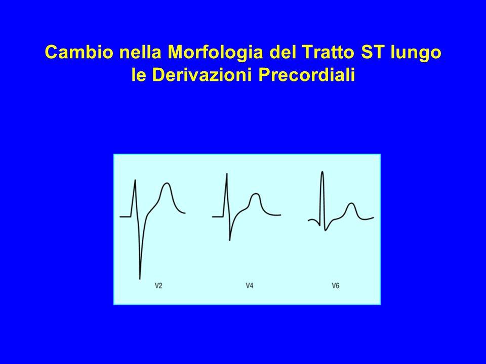 Cambio nella Morfologia del Tratto ST lungo le Derivazioni Precordiali