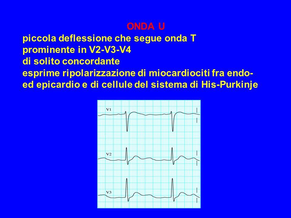 ONDA U piccola deflessione che segue onda T prominente in V2-V3-V4 di solito concordante esprime ripolarizzazione di miocardiociti fra endo- ed epicardio e di cellule del sistema di His-Purkinje