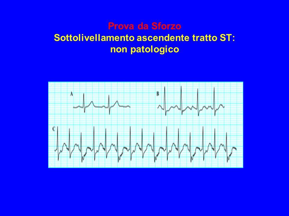 Prova da Sforzo Sottolivellamento ascendente tratto ST: non patologico