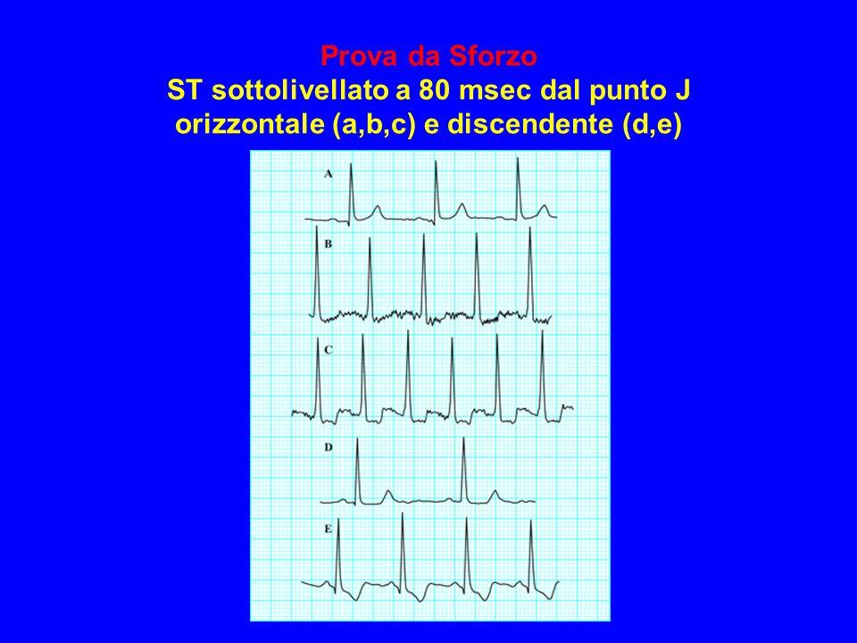 Prova da Sforzo ST sottolivellato a 80 msec dal punto J orizzontale (a,b,c) e discendente (d,e)