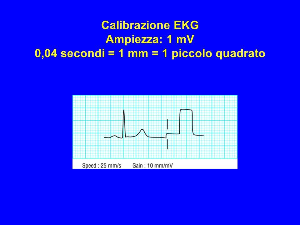 Calibrazione EKG Ampiezza: 1 mV 0,04 secondi = 1 mm = 1 piccolo quadrato