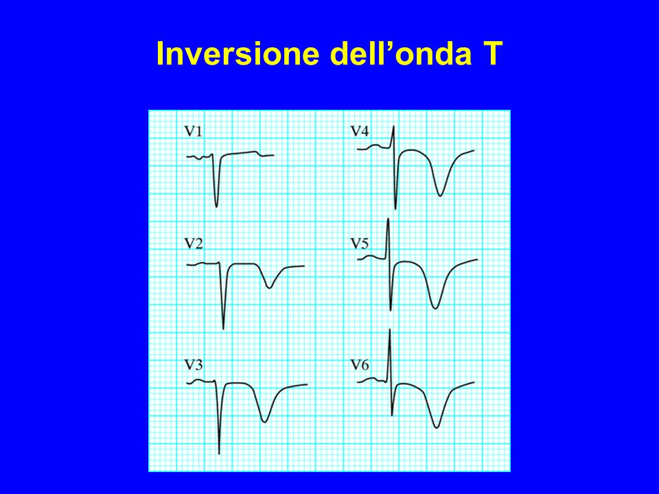 Inversione dell'onda T
