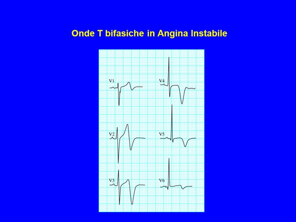 Onde T bifasiche in Angina Instabile