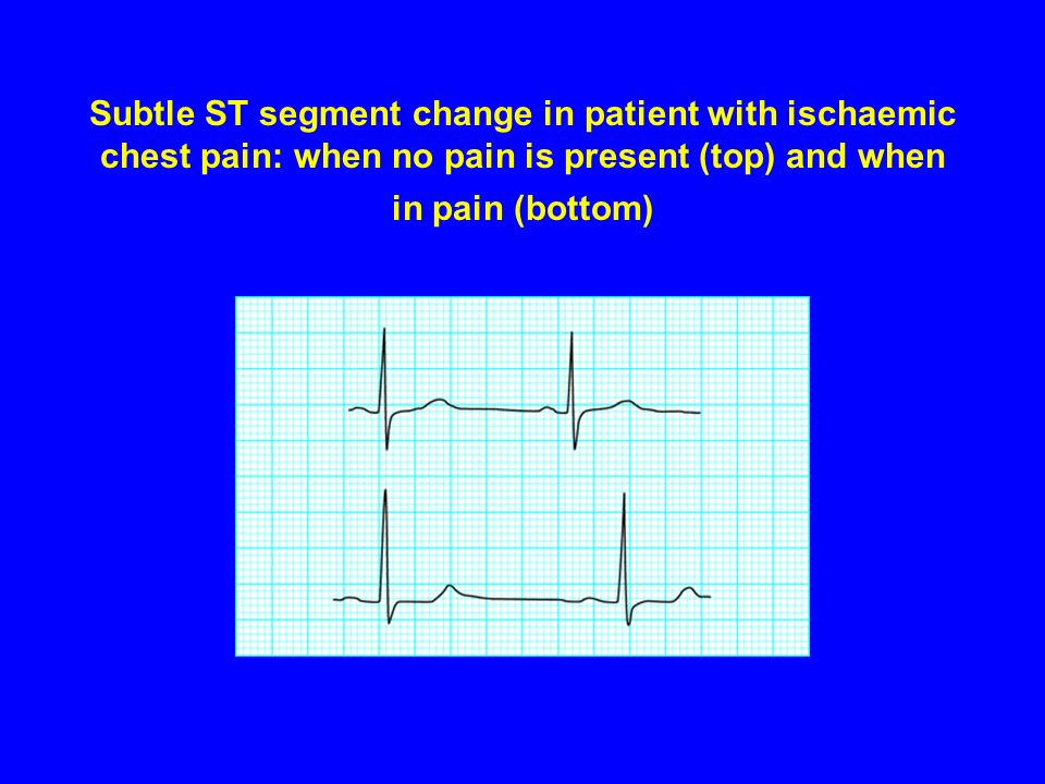 Subtle ST segment change in patient with ischaemic chest pain: when no pain is present (top) and when in pain (bottom)