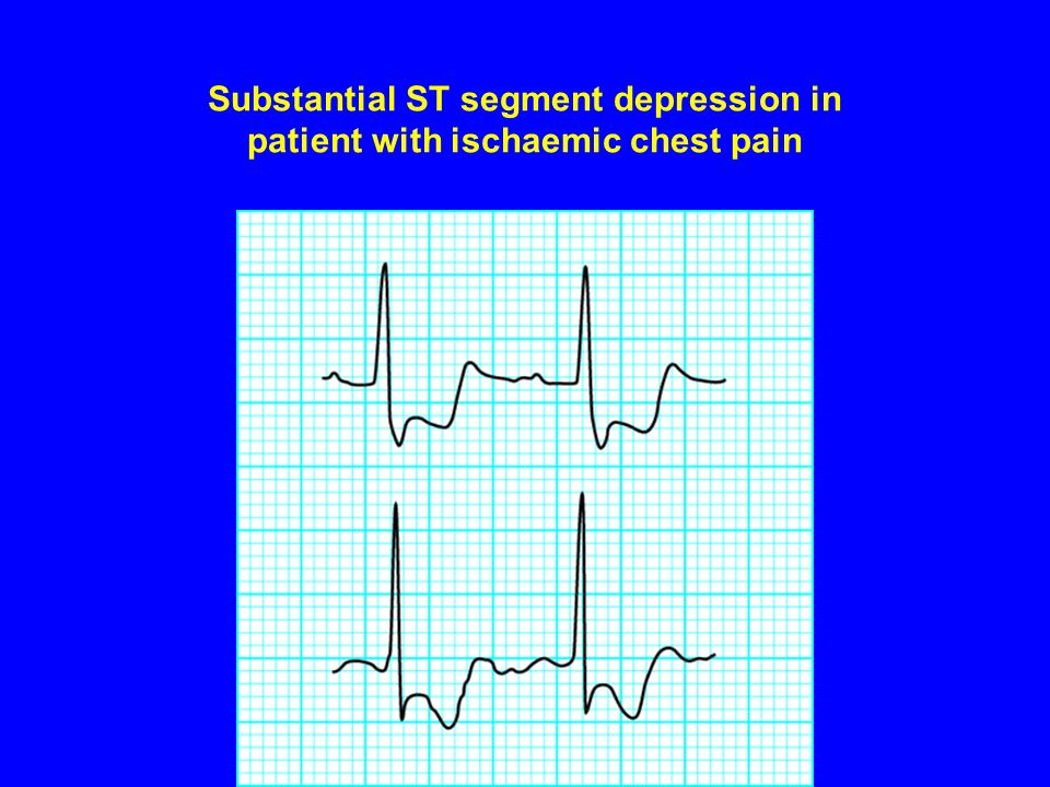 Substantial ST segment depression in patient with ischaemic chest pain
