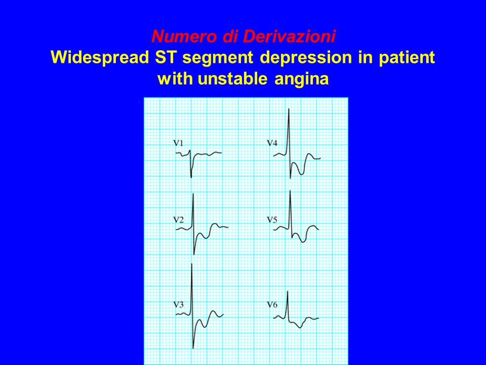 Numero di Derivazioni Widespread ST segment depression in patient with unstable angina