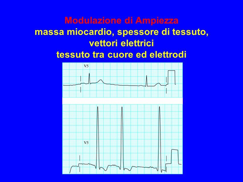 Modulazione di Ampiezza massa miocardio, spessore di tessuto, vettori elettrici tessuto tra cuore ed elettrodi