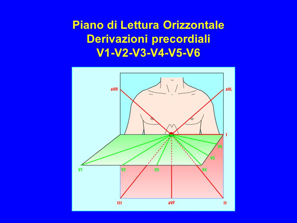 Piano di Lettura Orizzontale Derivazioni precordiali V1-V2-V3-V4-V5-V6