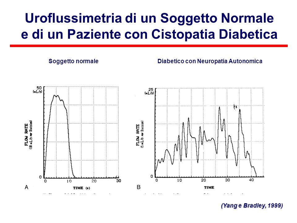 Uroflussimetria di un Soggetto Normale e di un Paziente con Cistopatia Diabetica