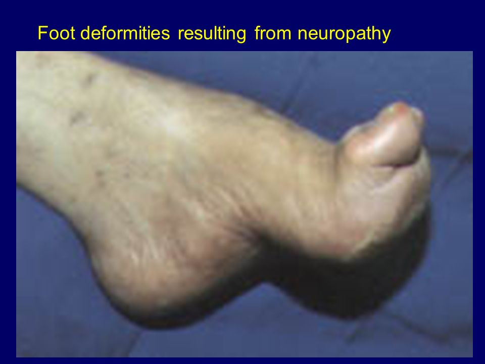 Foot deformities resulting from neuropathy