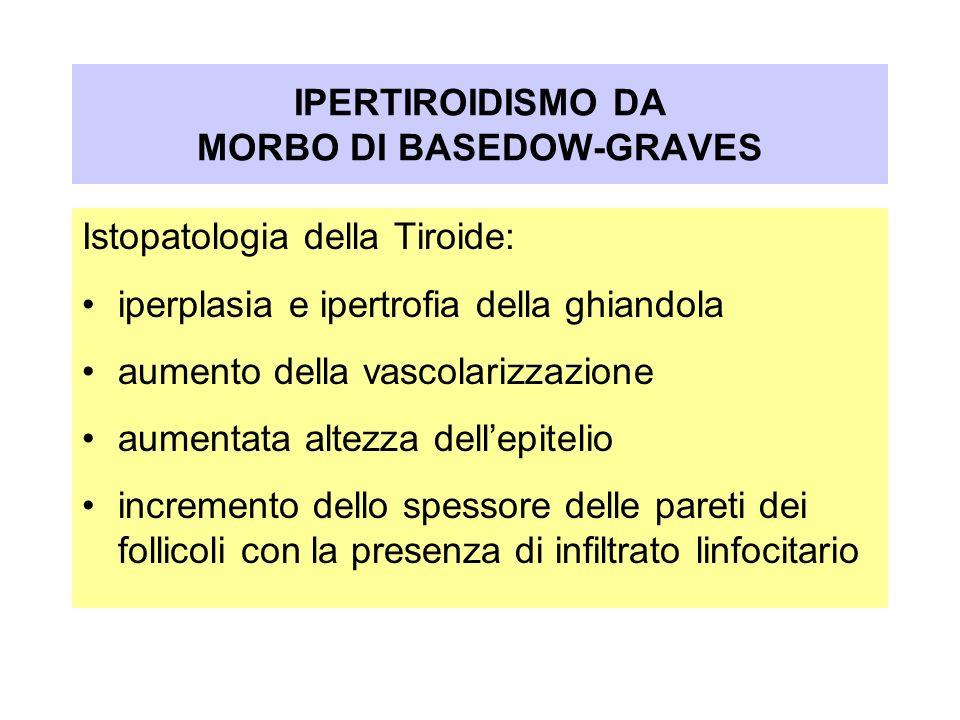 IPERTIROIDISMO DA MORBO DI BASEDOW-GRAVES