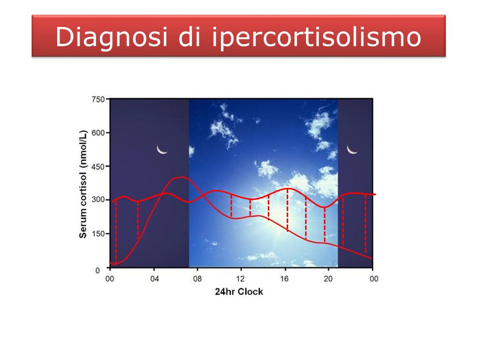 Diagnosi di ipercortisolismo