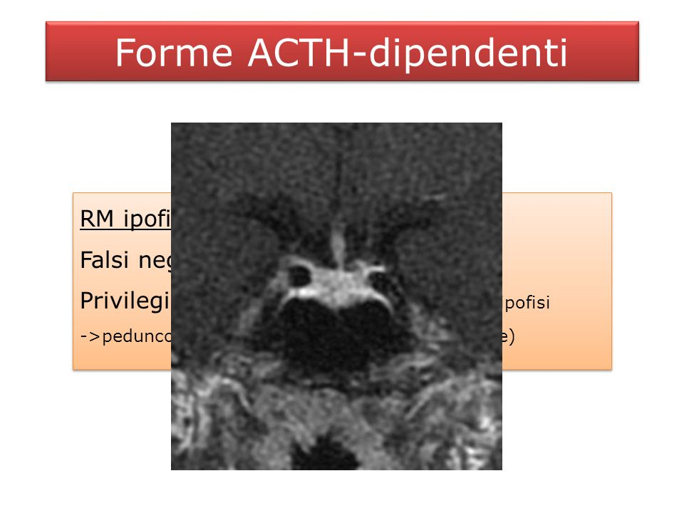 Forme ACTH-dipendenti