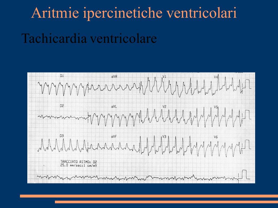 Aritmie ipercinetiche ventricolari