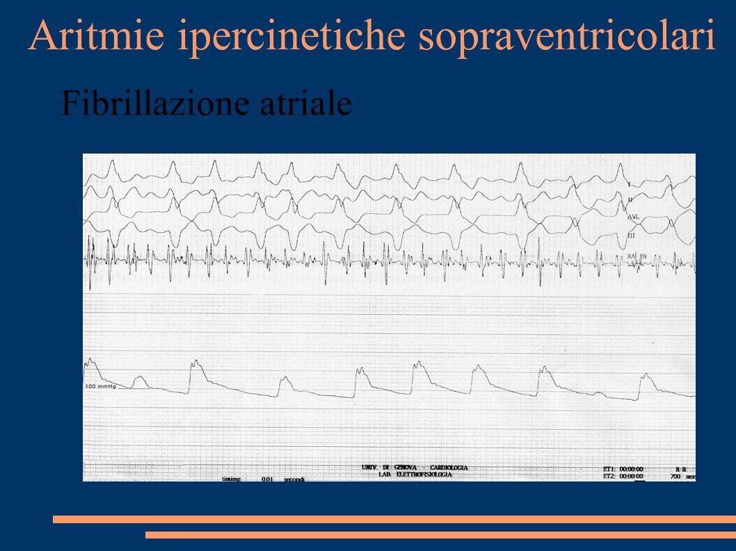 Aritmie ipercinetiche sopraventricolari