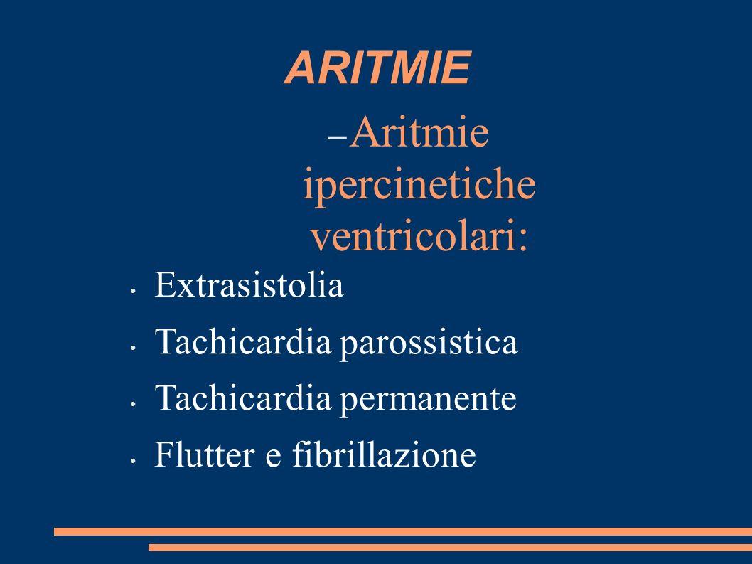 Aritmie ipercinetiche ventricolari: