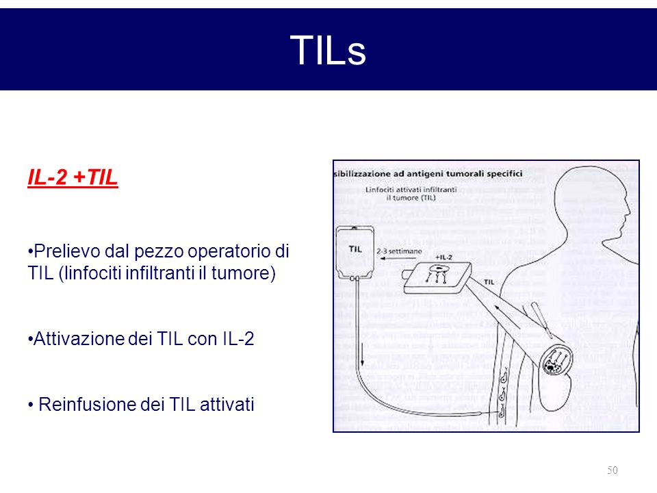 TILs IL-2 +TIL. Prelievo dal pezzo operatorio di TIL (linfociti infiltranti il tumore) Attivazione dei TIL con IL-2.