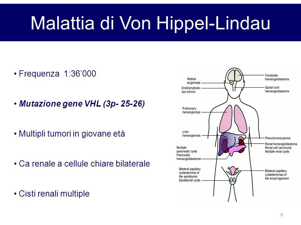Malattia di Von Hippel-Lindau