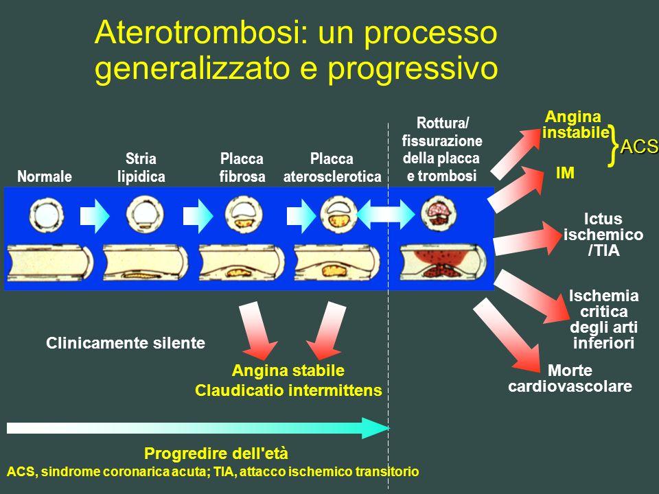Aterotrombosi: un processo generalizzato e progressivo