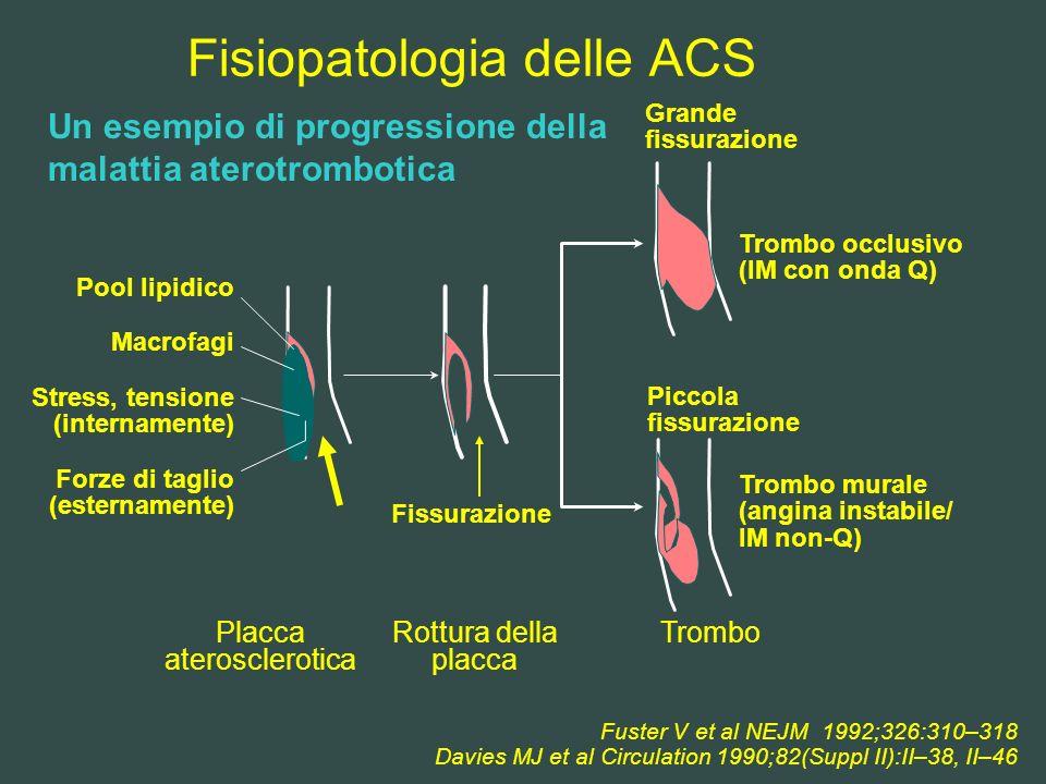 Fisiopatologia delle ACS