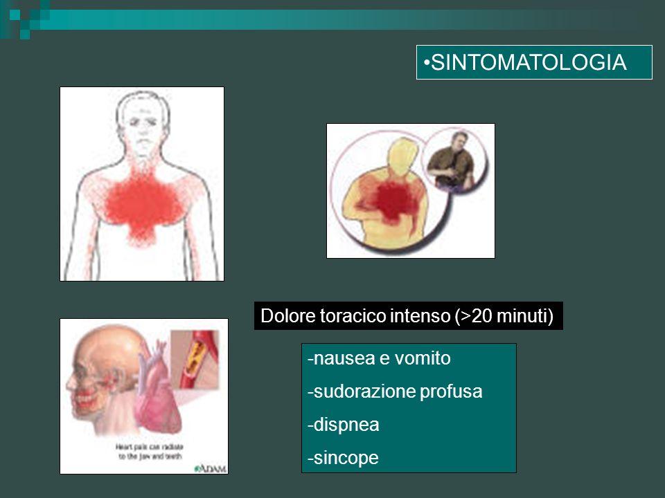 SINTOMATOLOGIA Dolore toracico intenso (>20 minuti)