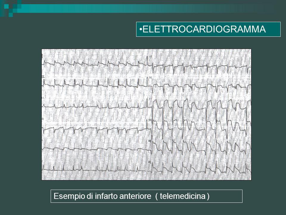ELETTROCARDIOGRAMMA Esempio di infarto anteriore ( telemedicina )