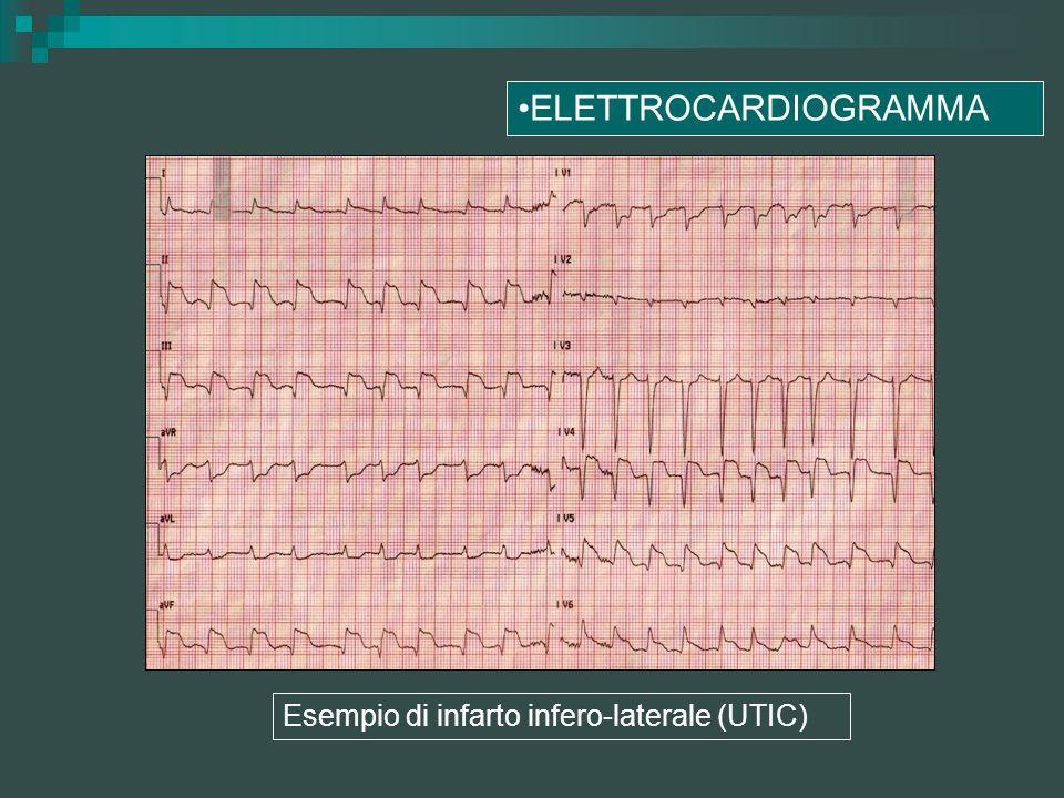 ELETTROCARDIOGRAMMA Esempio di infarto infero-laterale (UTIC)
