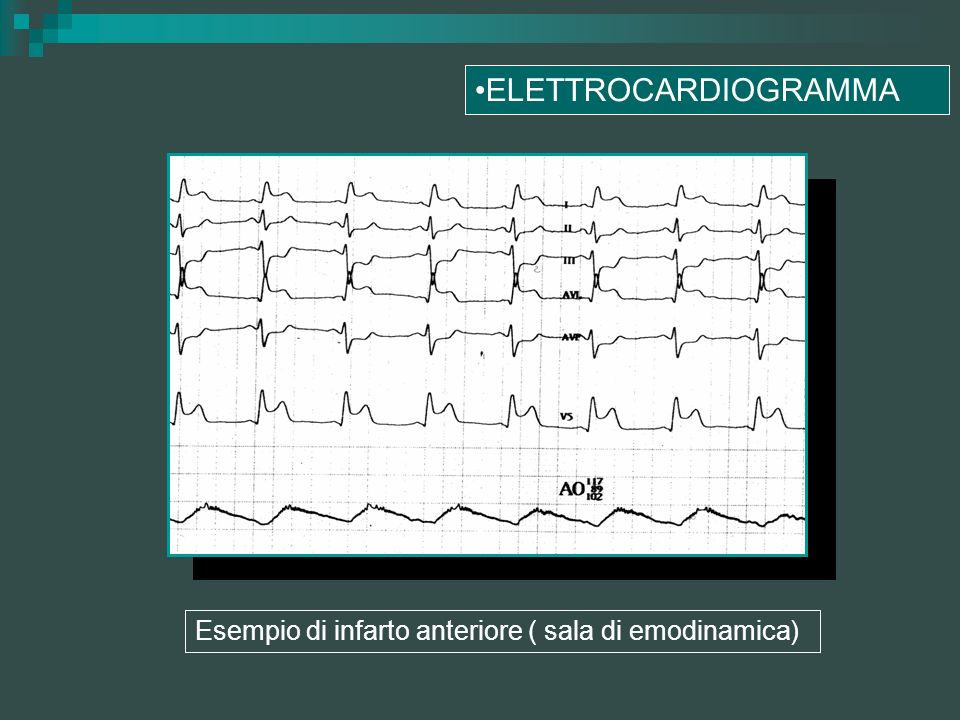 ELETTROCARDIOGRAMMA Esempio di infarto anteriore ( sala di emodinamica)