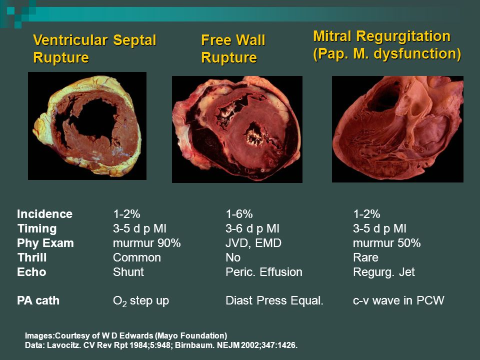 Mitral Regurgitation (Pap. M. dysfunction) Ventricular Septal Rupture