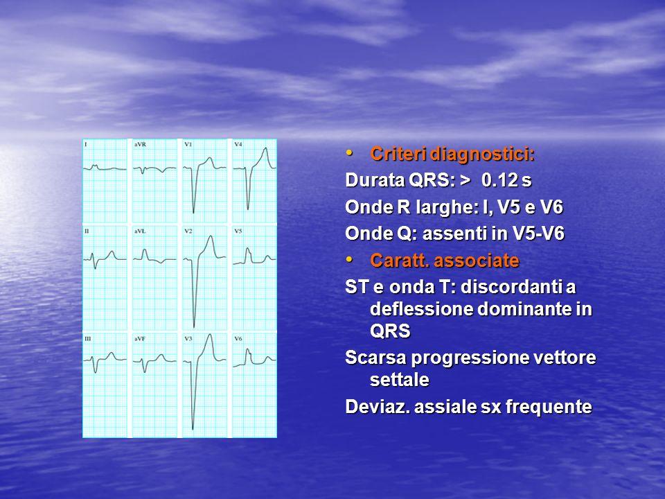 Criteri diagnostici:Durata QRS: > 0.12 s. Onde R larghe: I, V5 e V6. Onde Q: assenti in V5-V6. Caratt. associate.