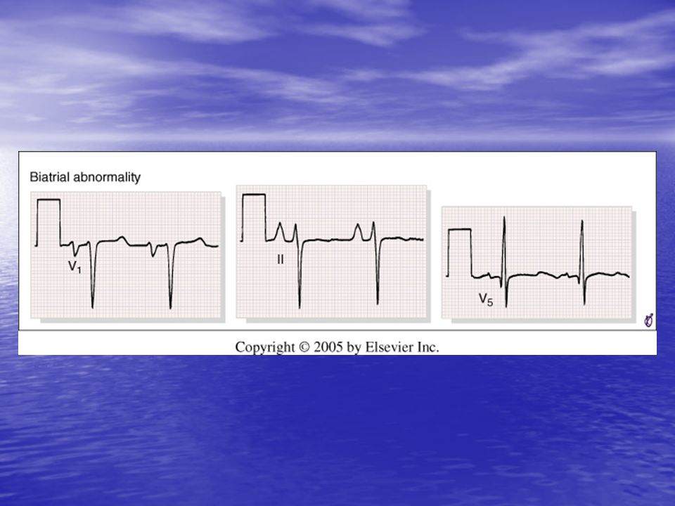 <b>FIGURE 9-18</b> Biatrial abnormality, with tall P waves in lead II (right atrial abnormality) and an abnormally large terminal negative component of the P wave in lead V<sub>1</sub> (left atrial abnormality).